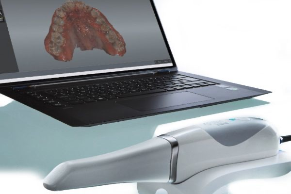 Intra Oral Scanner enable precise 3D scans of your mouth
